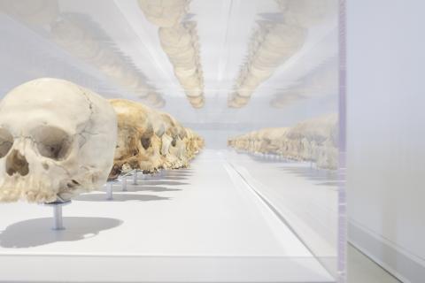 Schädel in der Ausstellung «In der Reihe tanzen» © MKB