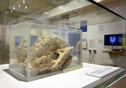 Was passiert im Gehirn beim Essen?
